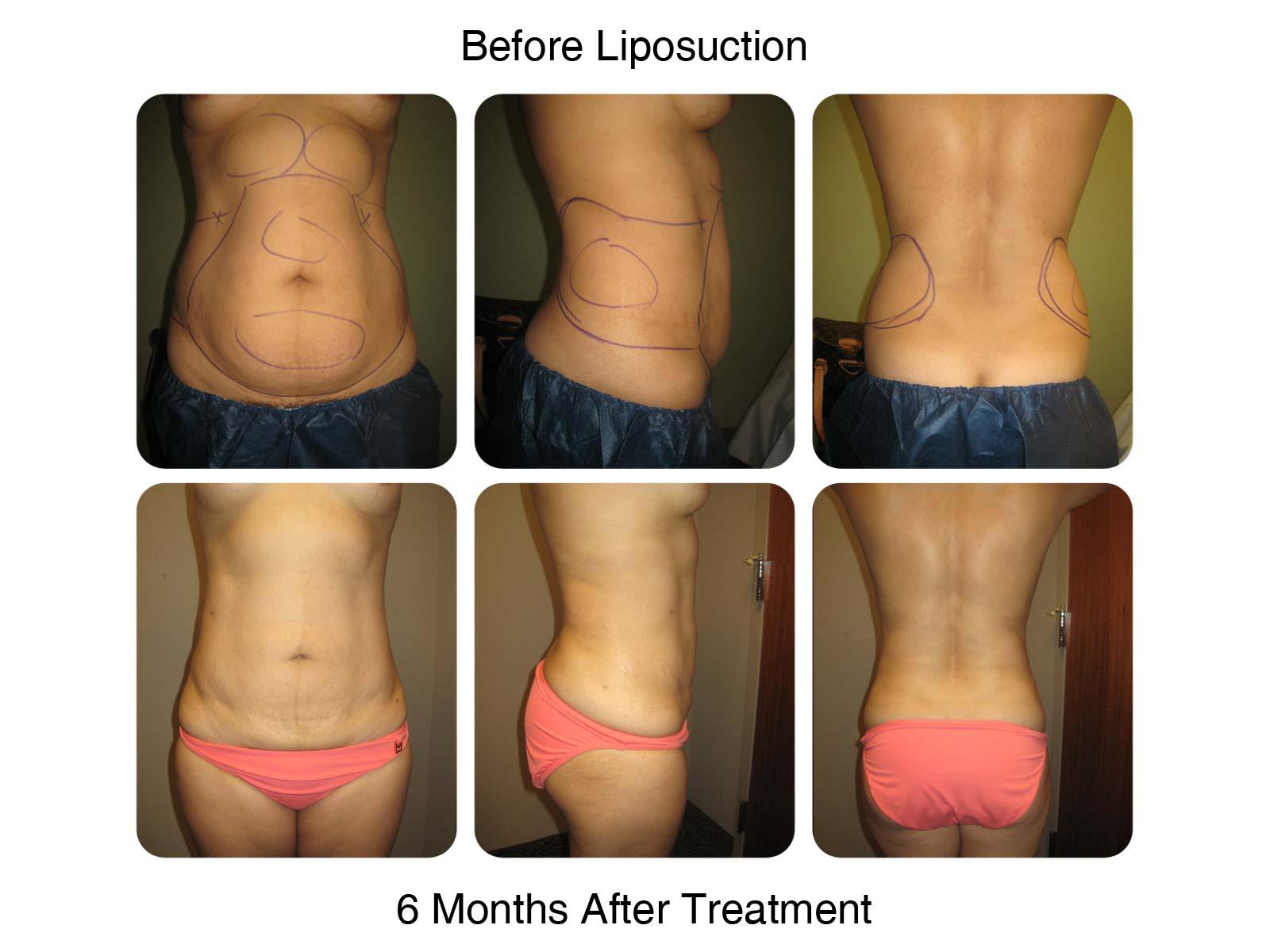 Fantastic Example of Lipo Procedure