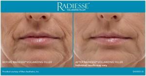Before and After - Radiesse