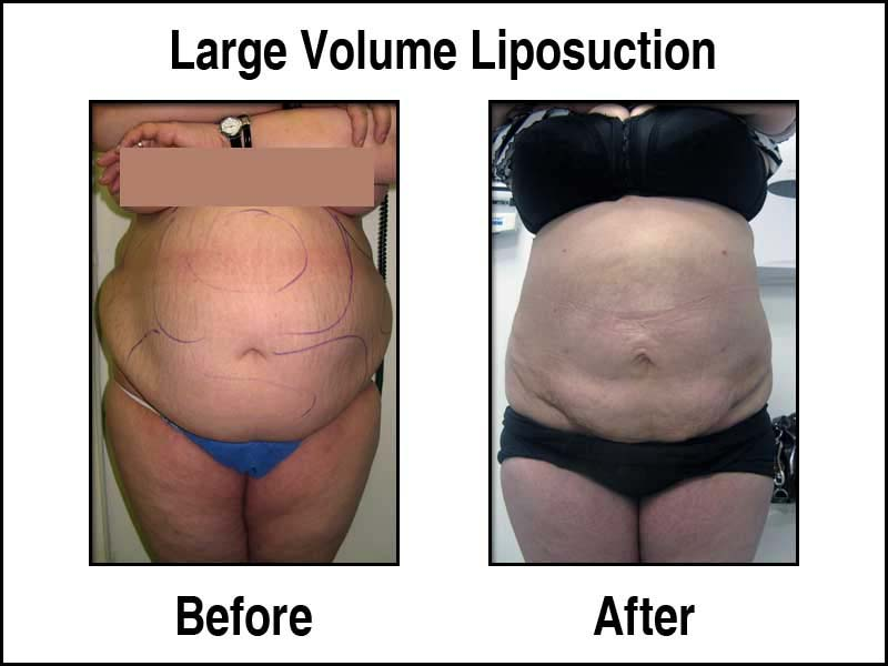 Before and After of a LVL Procedure