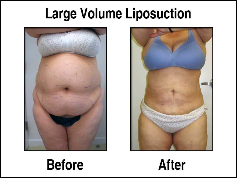 Large Volume Liposuction Results