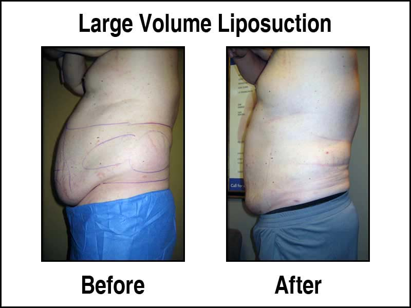 Male Large Volume Liposuction