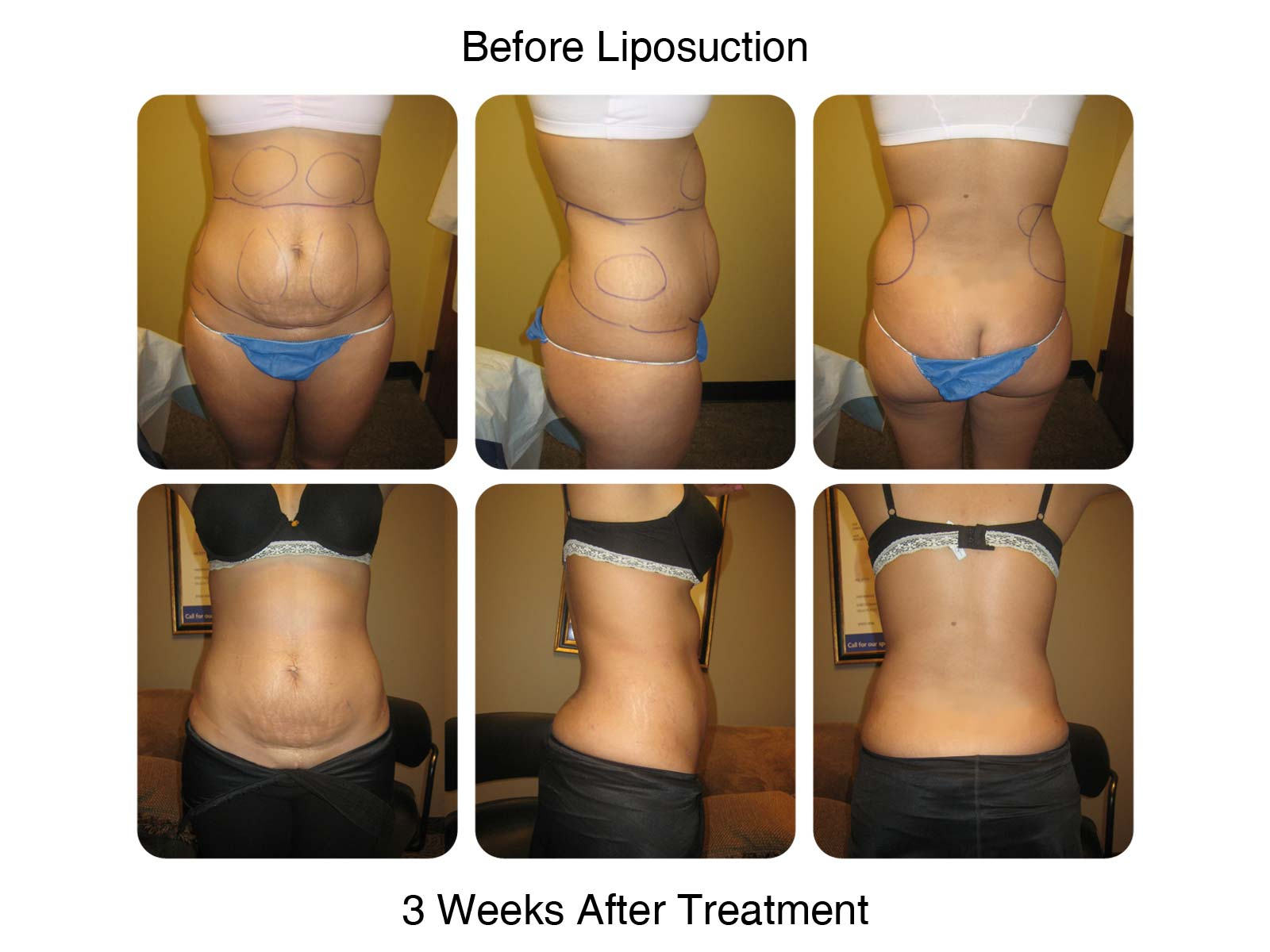 Liposuction Fat Transfer New Radiance Of St Lucie