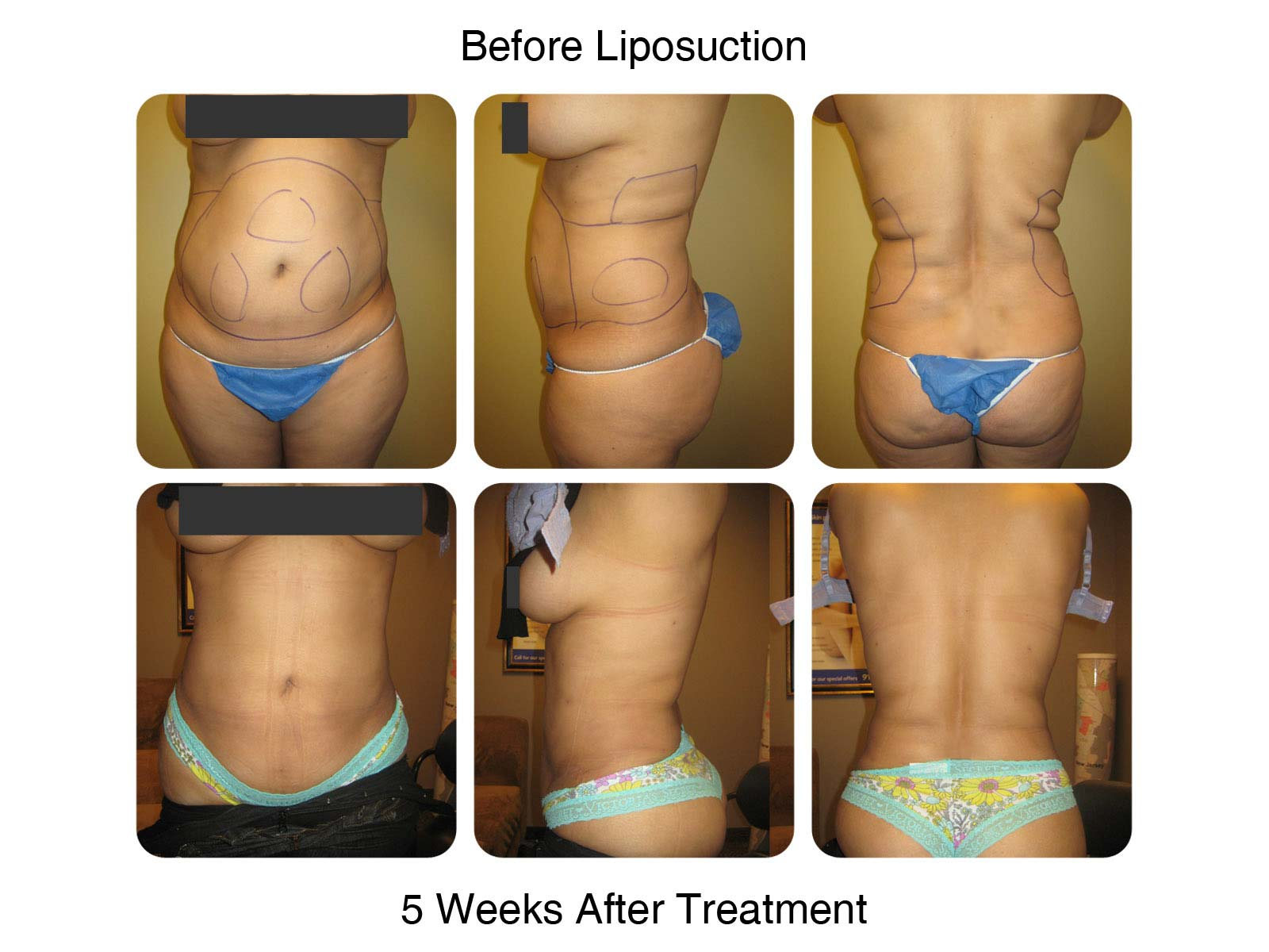 Liposuction - Results 5 Weeks After Treatment