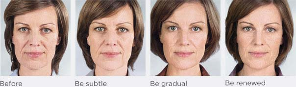Sculptra Before & After