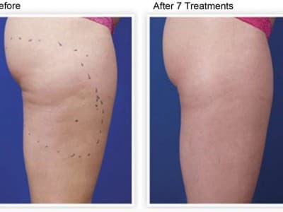 Venus Freeze Cellulite Reduction