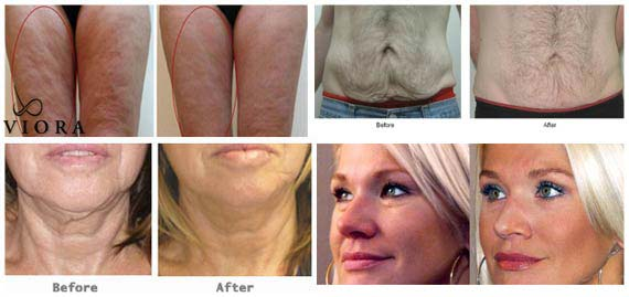 Viora Skin Tightening Before & Afters