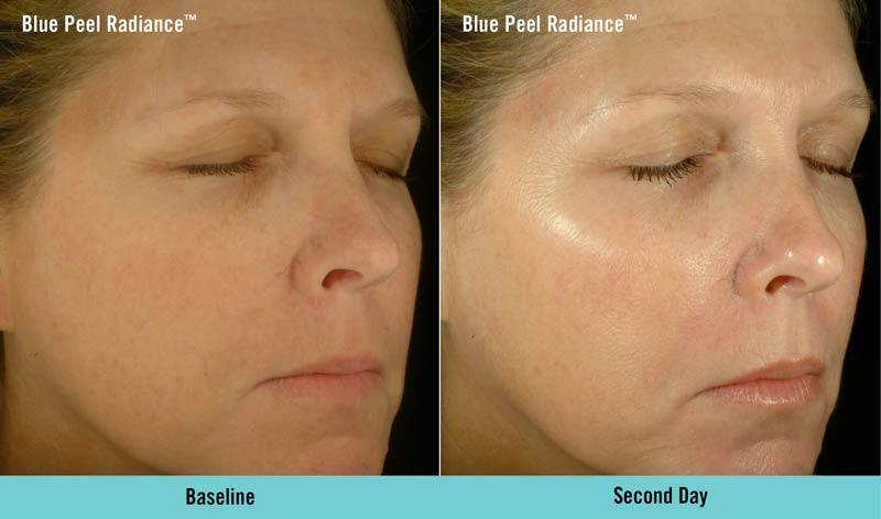 Obagi Blue Peel Radiance Before & After