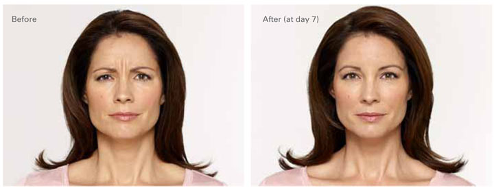 Botox Before After 1