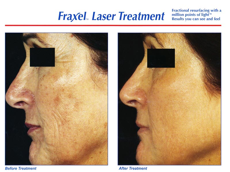 Fraxel face 4 - Before and After