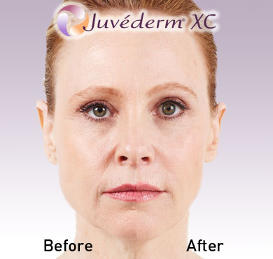 juvedermBeforeAfter2