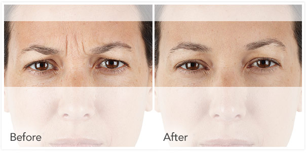 xeomin BeforeAfter 7