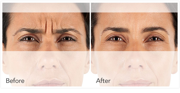 xeomin Before After 5