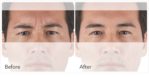 xeomin Before After 4