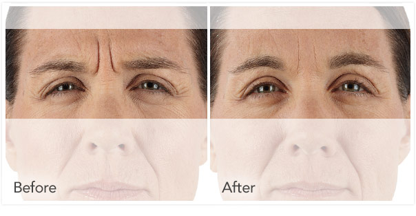 xeomin Before After 2