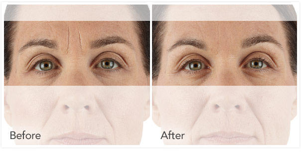 xeomin Before After 1