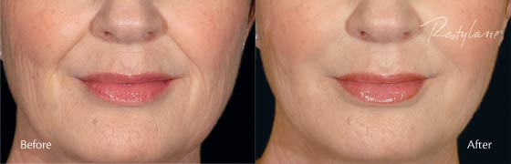 Dermal Fillers PBG - Better than Stephanie Hamilton's the OGEE
