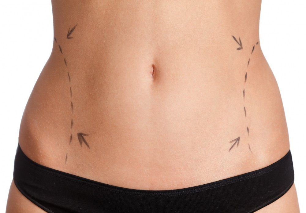 Top Liposuction Questions Answered, Part 3