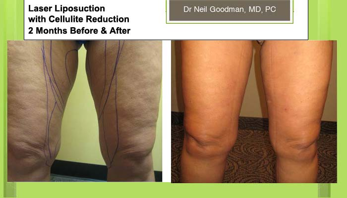 Laser Liposuction Cellulite Reduction