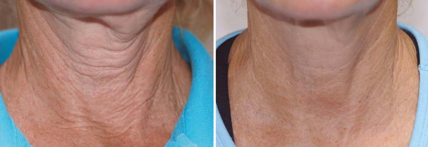 Exilis Before & After Neck