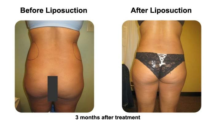 Liposuction Fat Transfer