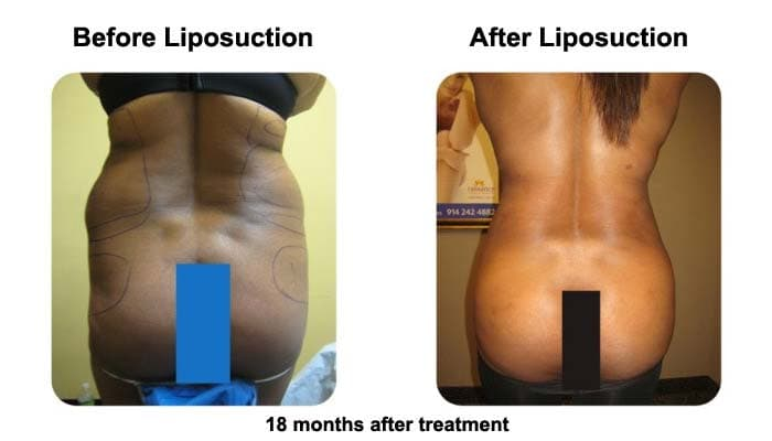 Liposuction 18 Months