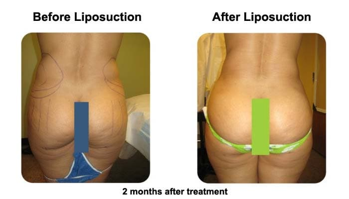 Liposuction after 2 Months