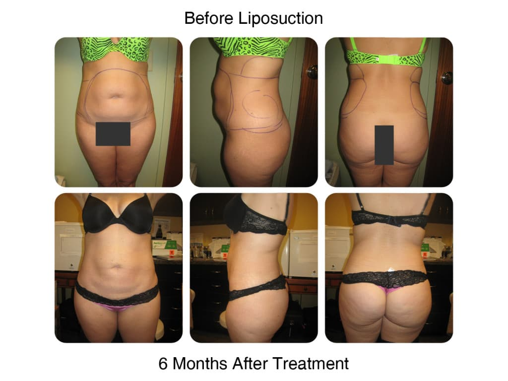 liposuction before and after (13)