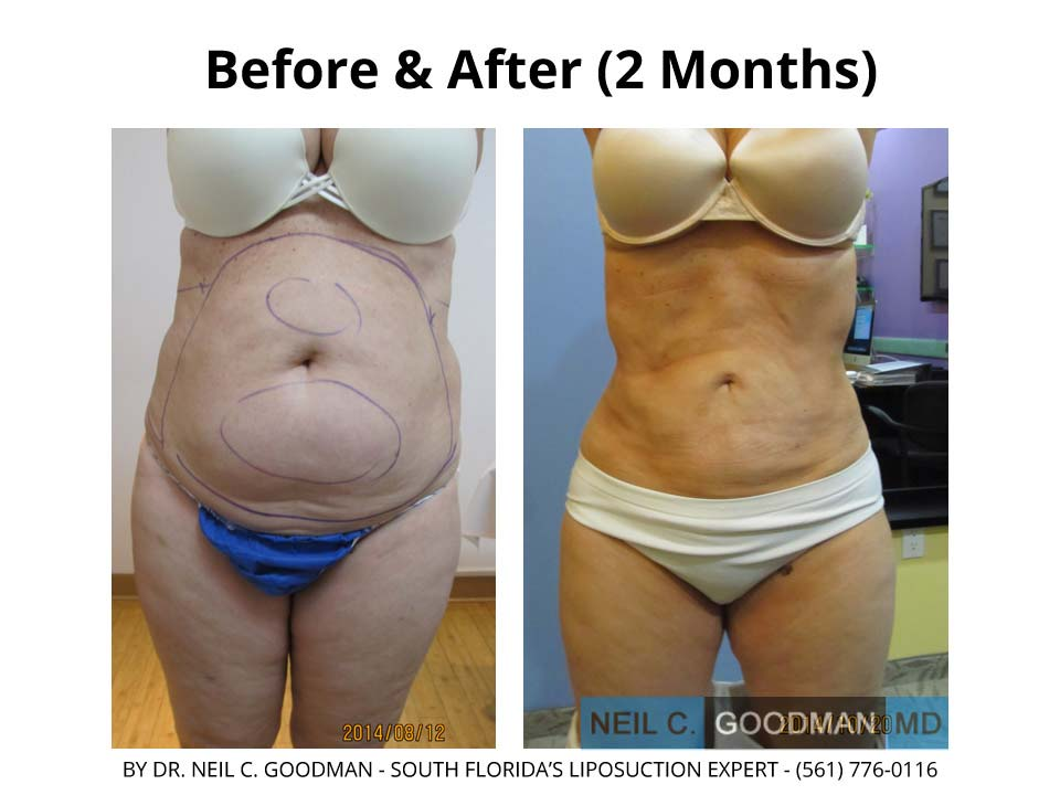 Large Volume Liposuction of woman after 2 Months