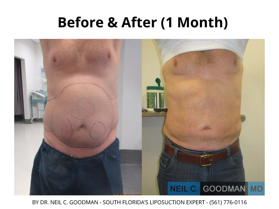 Large Volume Liposuction Male 1 Month