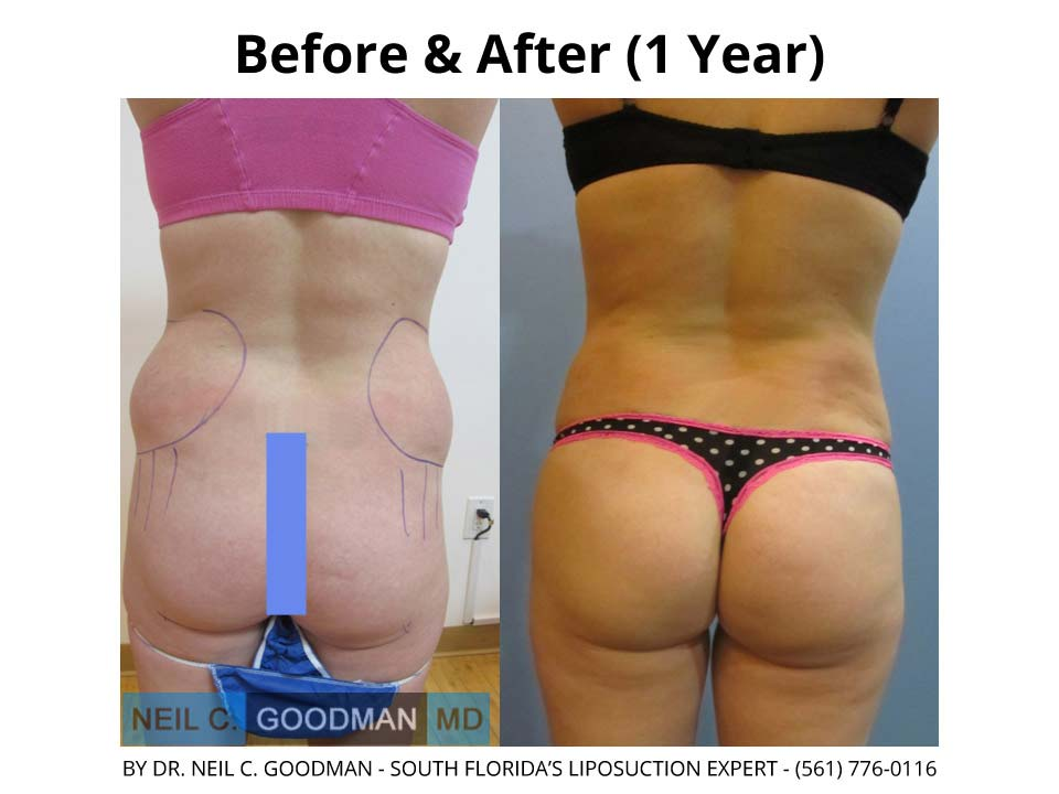 Brazilian Buttlift after 1 Year result