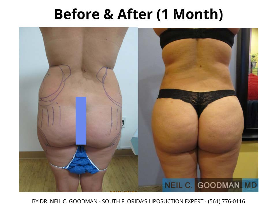 Brazilian Buttlift after 1 Month