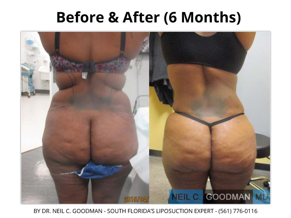 Large Volume Liposuction of woman 6 month result