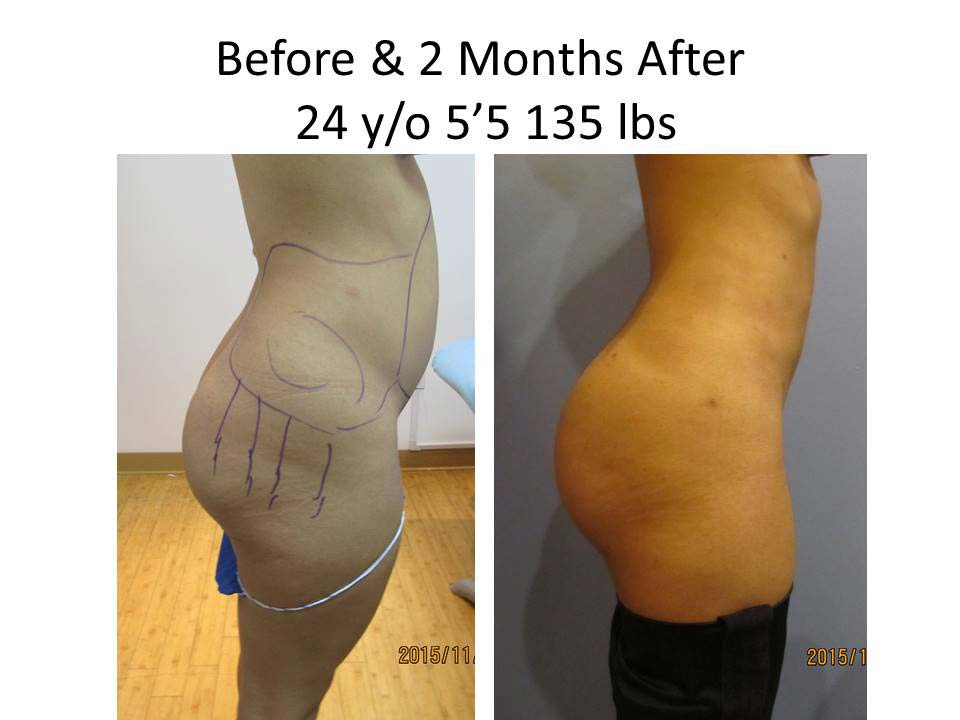 Brazilian Buttlift after 2 Months photo