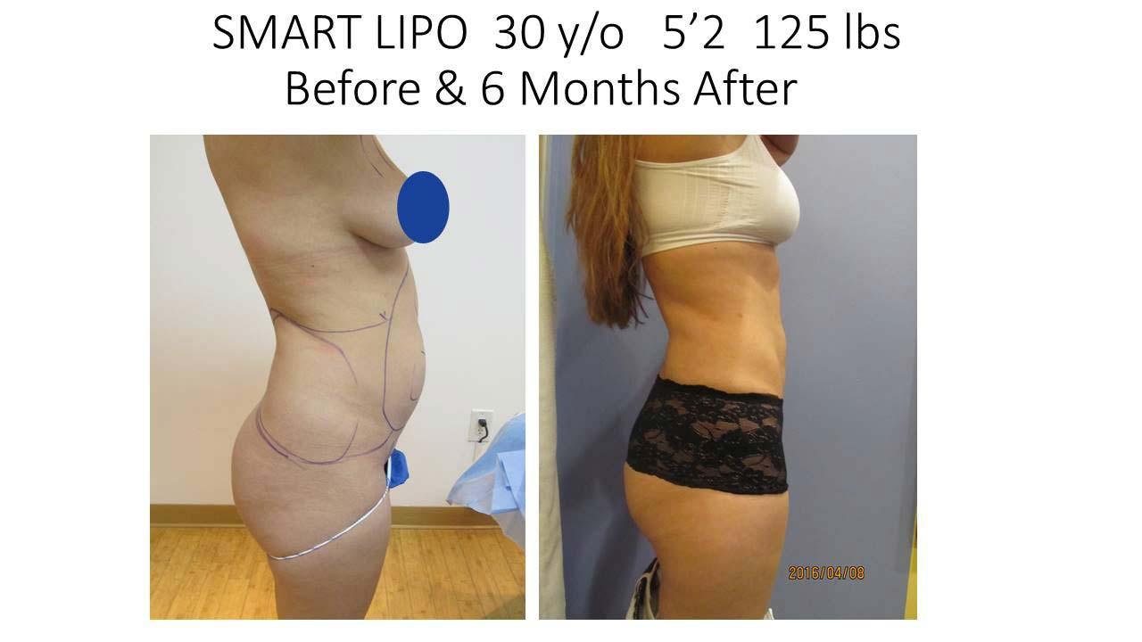 Smartlipo 30 Y/O 6 month results