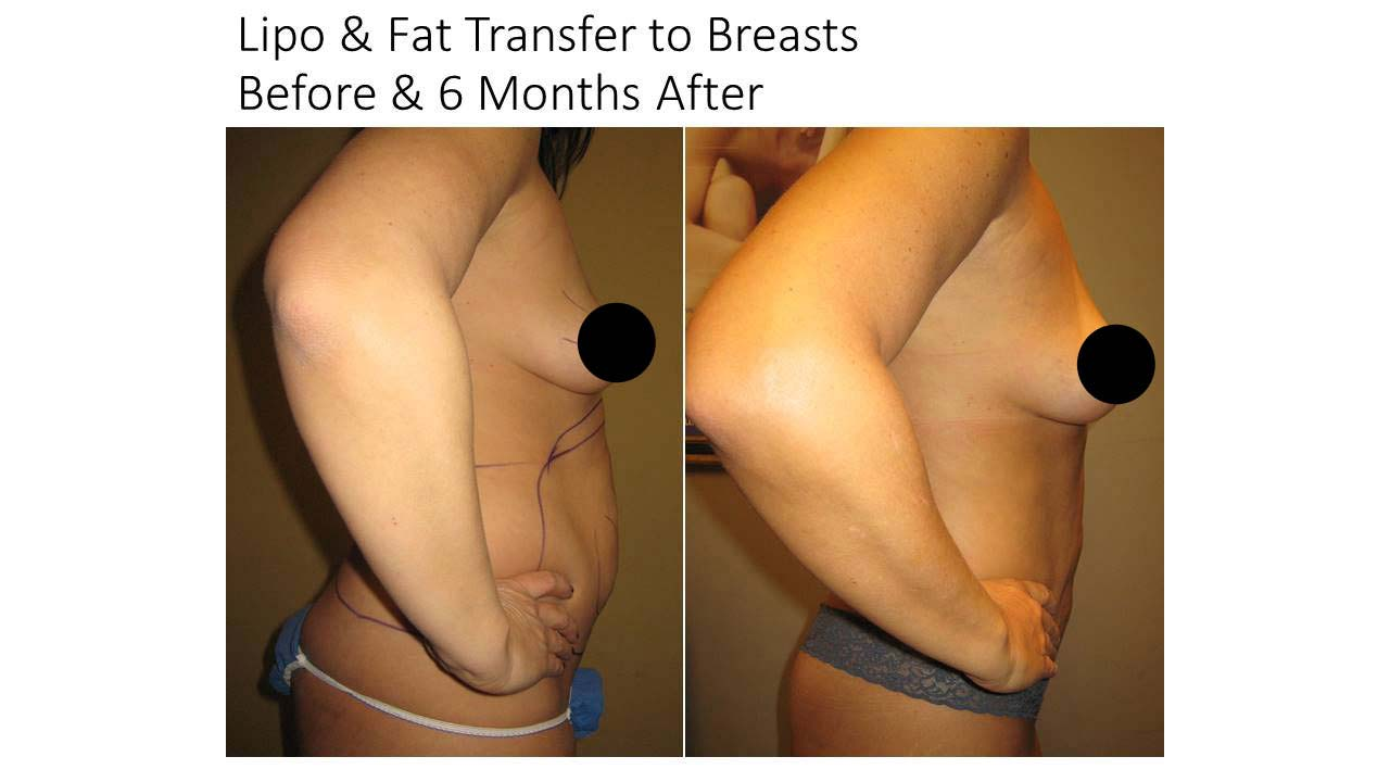 Lipo and Fat Transfer Breasts