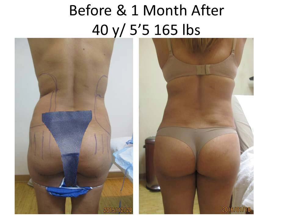 Brazilian Buttlift 40 Y/O 1 Month
