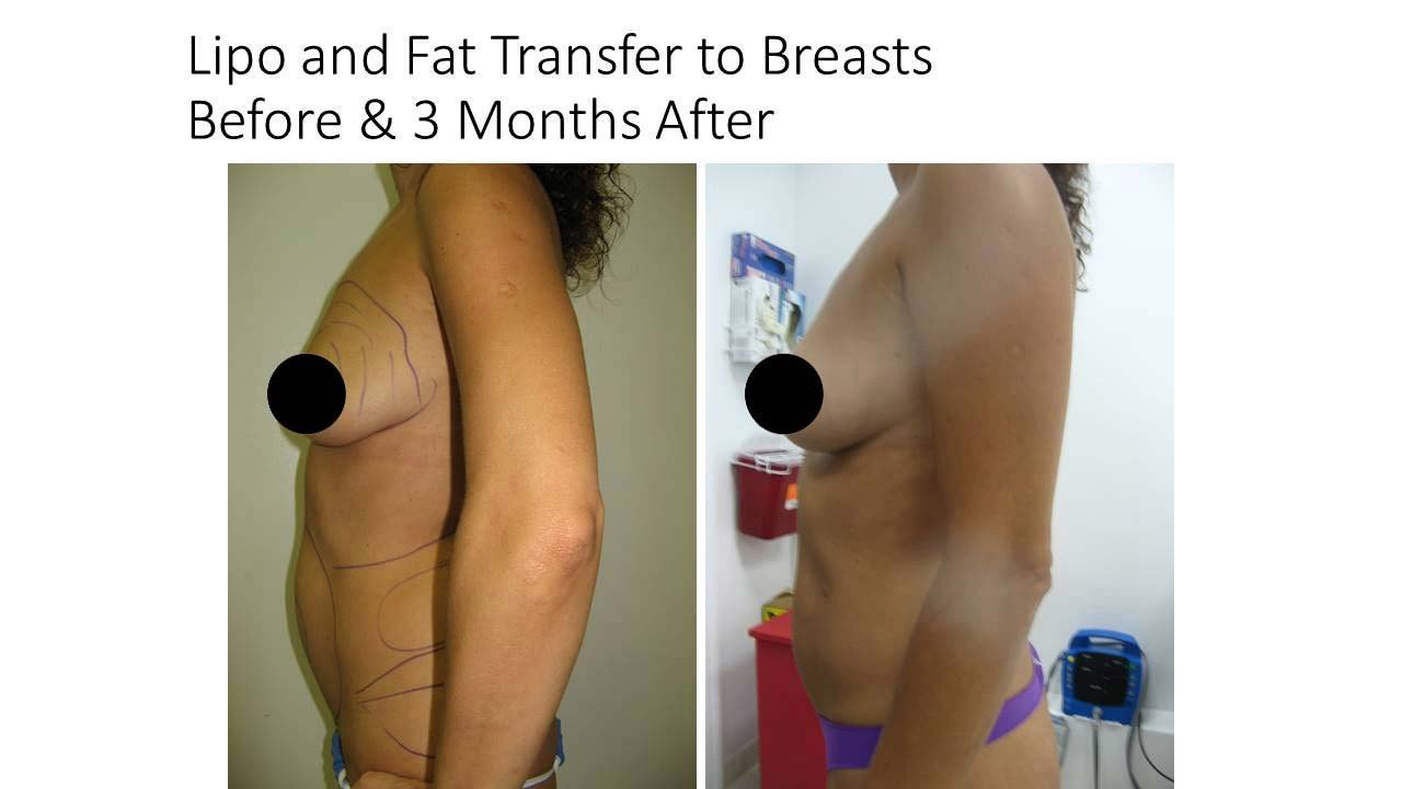 Lipo and Fat Transfer to Breasts Results