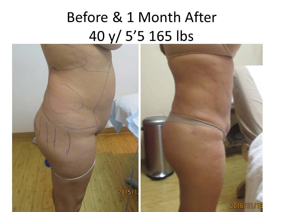 Brazilian Buttlift of 40 Y/O after 1 Month photo