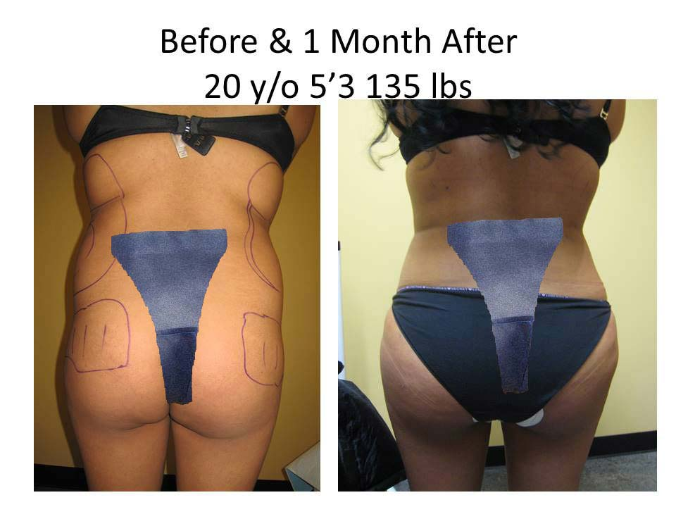 Brazilian Buttlift 20 Y/O 1 Month