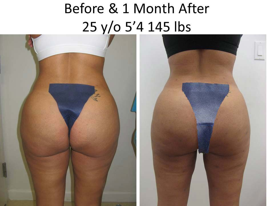 Brazilian Buttlift 25 Y/O 1 Month