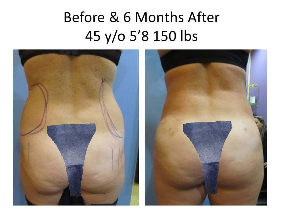 Brazilian Buttlift 45 Y/O after 6 Months