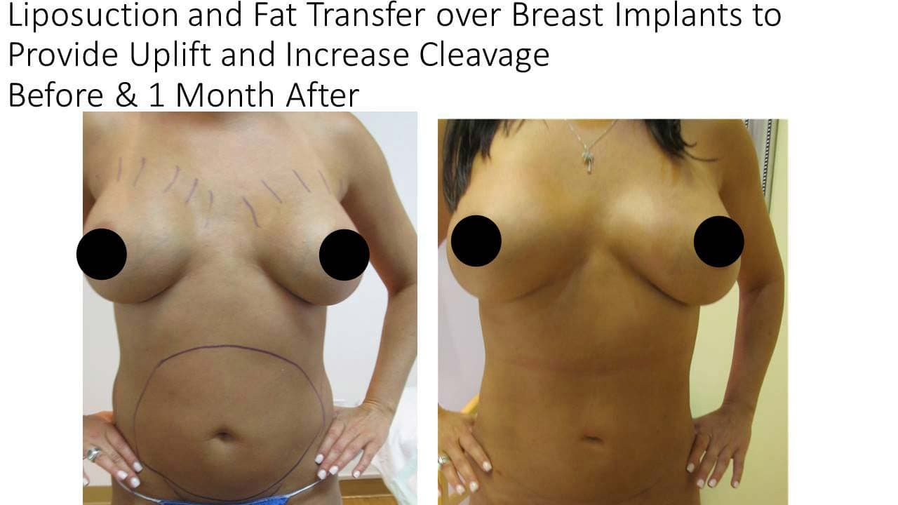 Lipo Increase Cleavge and Uplift