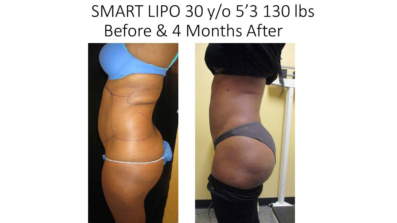 Smartlipo 30 Y/O after 4 month result