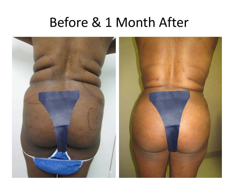 Brazilian Buttlift 1 Month result