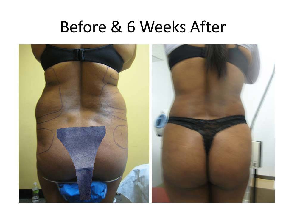 Brazilian Buttlift 6 Weeks