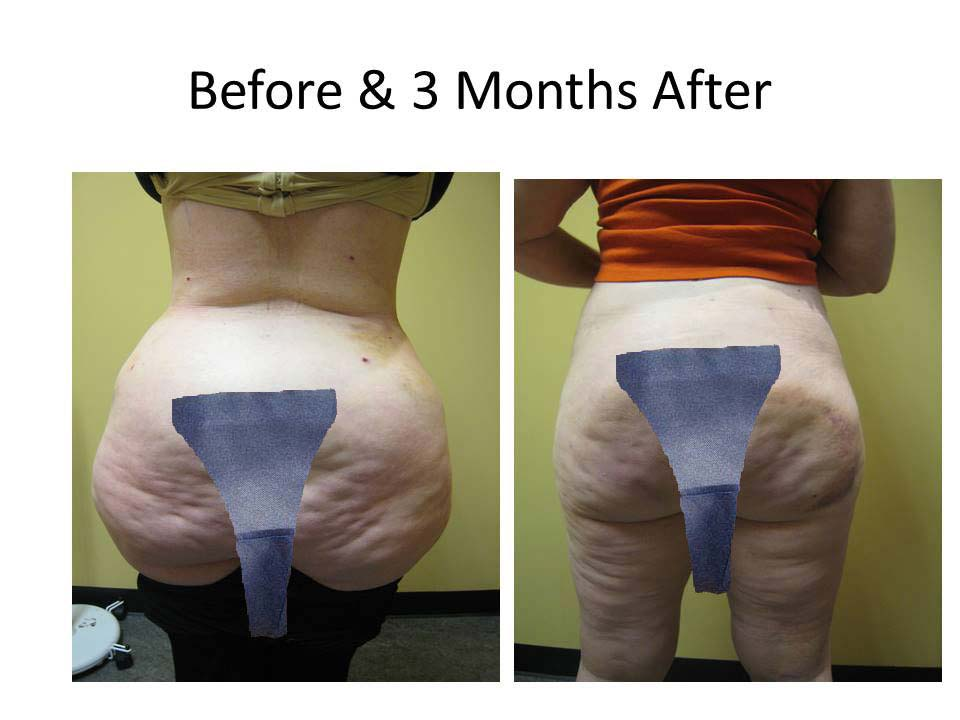 Brazilian Buttlift after 3 Months