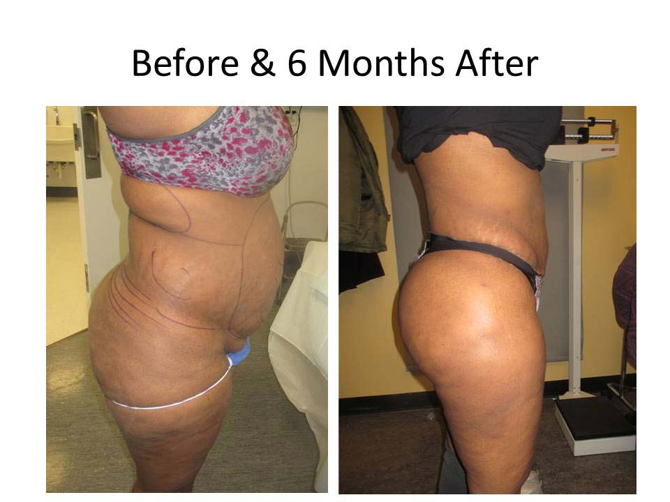 Brazilian Buttlift 6 month result photo