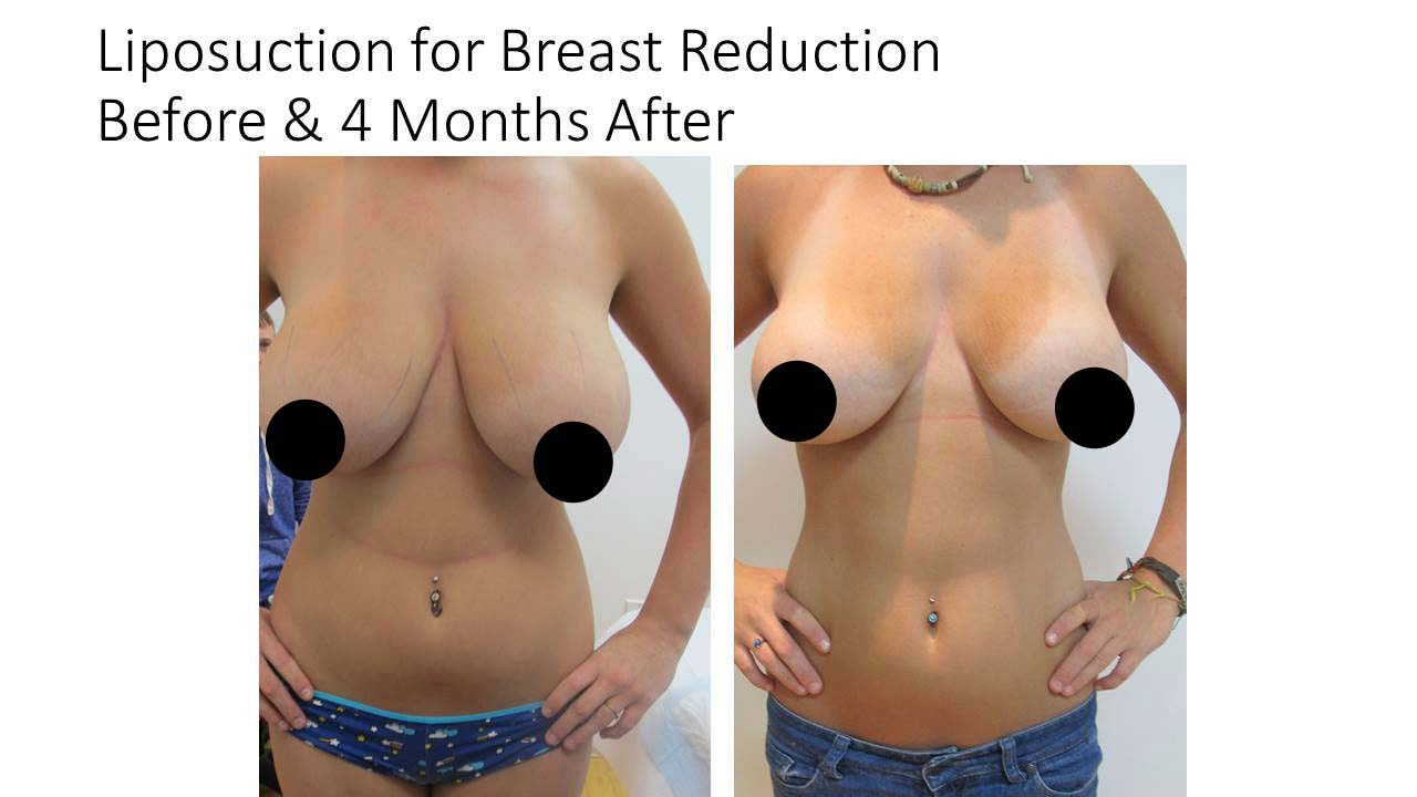 Liposuction for Breast Reduction