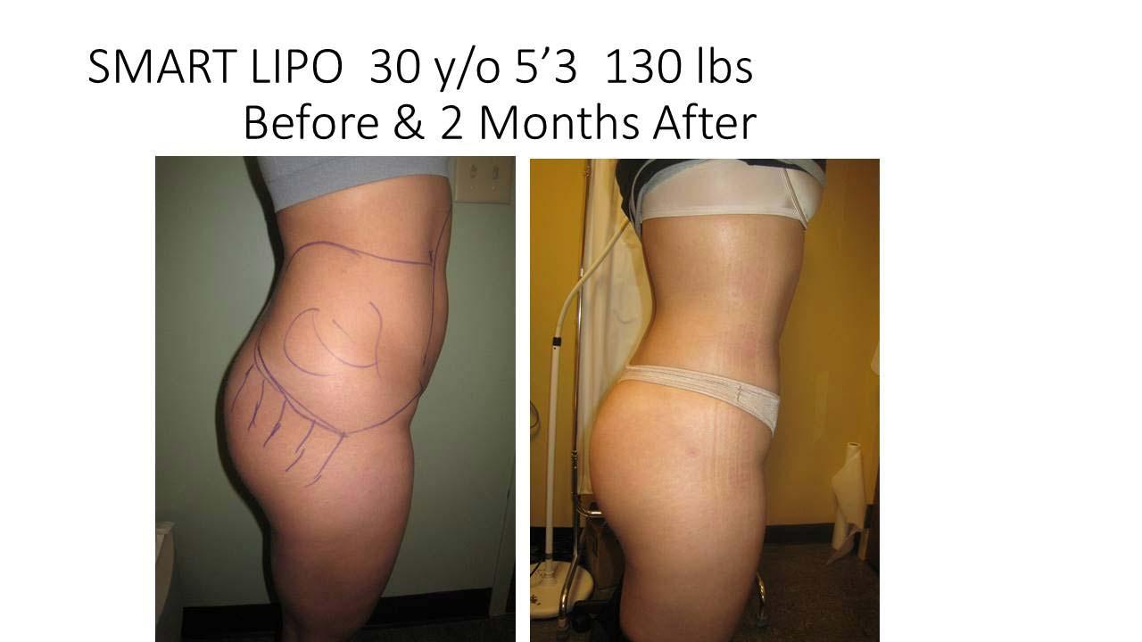 Smartlipo 30 Y/O 2 months
