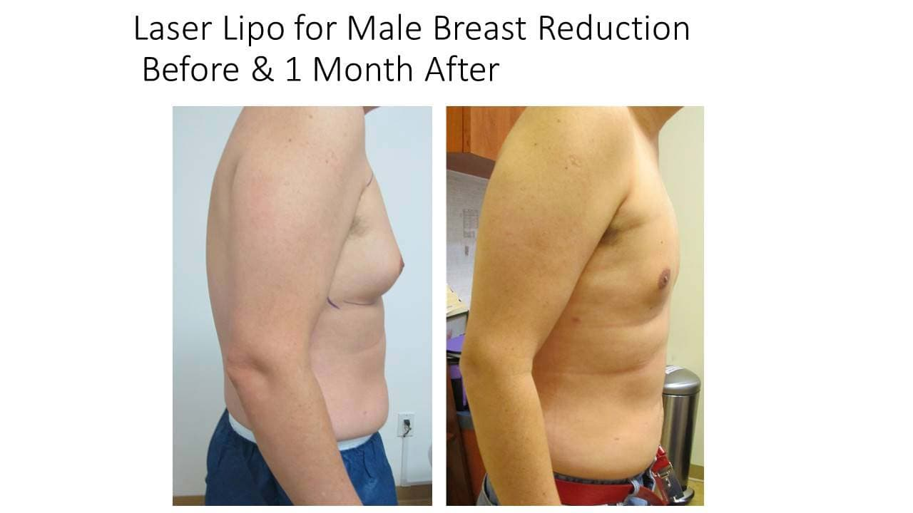 Laser Lipo For Male Breast Reduction